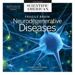 Fragile Brain by  Scientific American audiobook