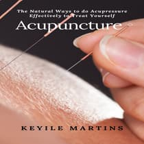 Acupuncture by Keyile Martins audiobook